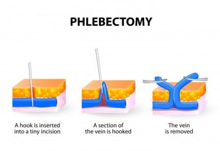 HiRes-ISTOCK-Phlebectomy-e1410967205462