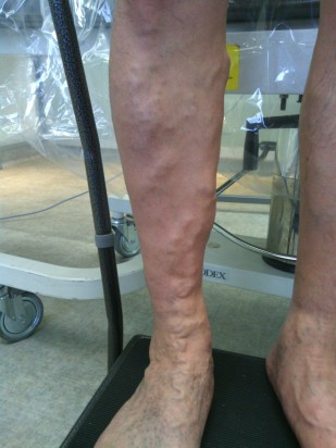 dawming yang rt leg before.jpg